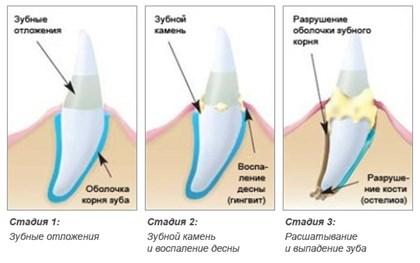 Микробы на зубах под микроскопом фото